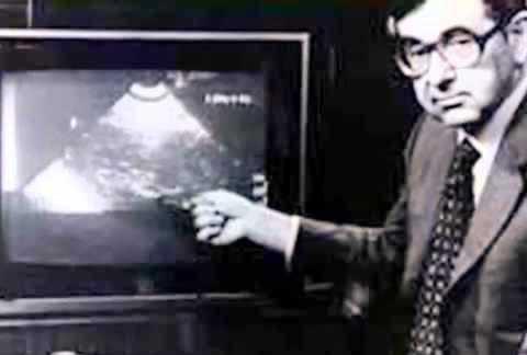 Bernard Nathanson Aborto (eligelavida)